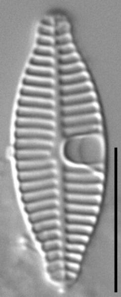 Planothidium incuriatum LM2