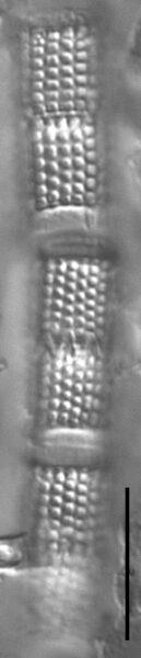 Aulacoseira granulata LM5