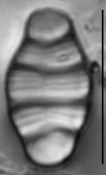 Meridion anceps LM1