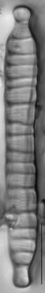 Meridion anceps LM4