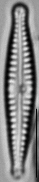 Gomphonema superiorense LM3