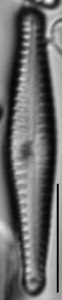 Gomphonema superiorense LM1