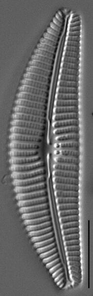 Cymbella subturgidula LM2