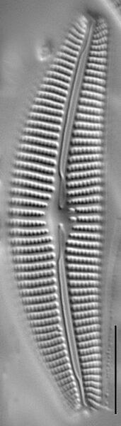 Cymbella subturgidula LM3