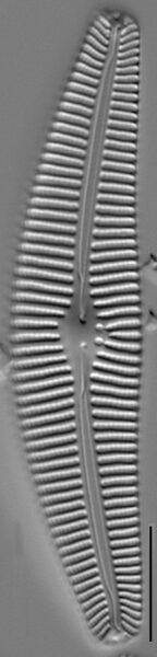 Cymbella subturgidula LM7