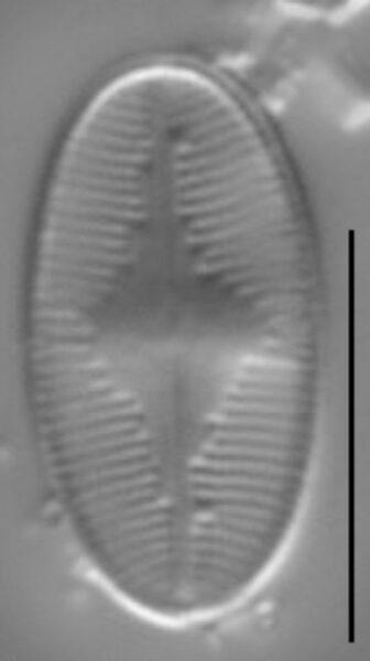 Eunotia microcephala LM4