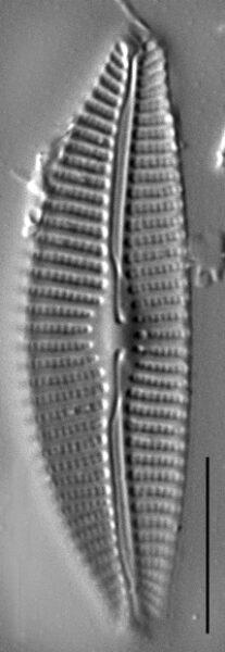 Aulacoseira subarctica SEM2