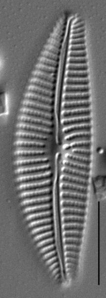Aulacoseira subarctica SEM1