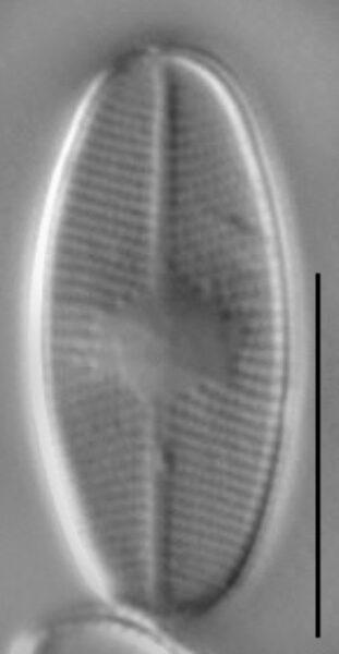 Eunotia perpusilla LM2
