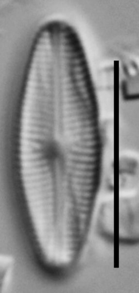 Genkalia Digitulus Cthp001 A 112117 68 C