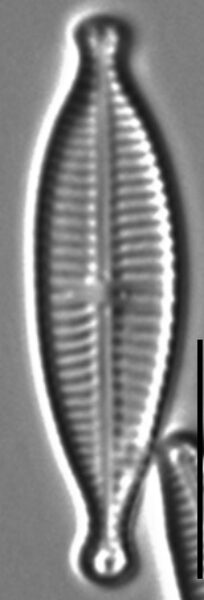 Gomphonema Lagenula LM2