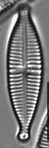 Gomphonema Lagenula LM4