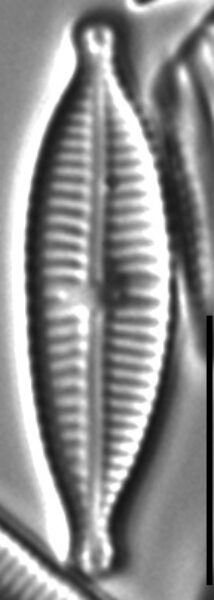 Gomphonema Lagenula LM5