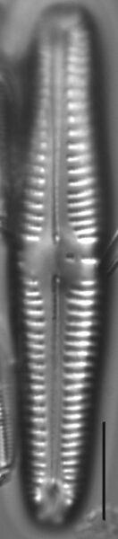 Gomphonema Americobtusatum 0 405501