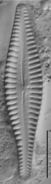 Gomphonema Gibba 4356 A 2