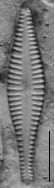 Gomphonema Gibba 4356 A 3