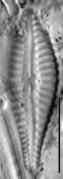 Gomphonema Gibba 4356 A 5