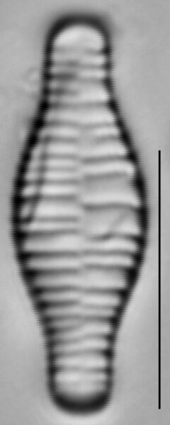 Fragilariforma bicapitata LM5