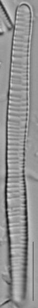 Fragilariforma bicapitata LM2