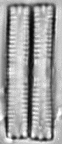 Fragilaria vaucheriae LM5