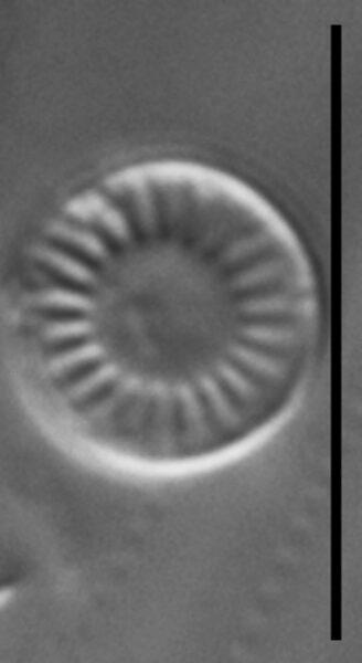 Discostella lakuskarluki LM1