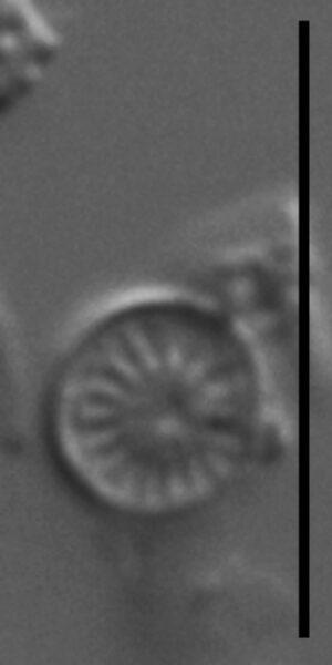 Discostella lakuskarluki LM7