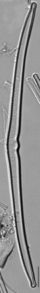 Hannaea superiorensis LM3