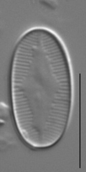Eunotia microcephala LM5