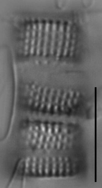 Aulacoseira nivalis LM1