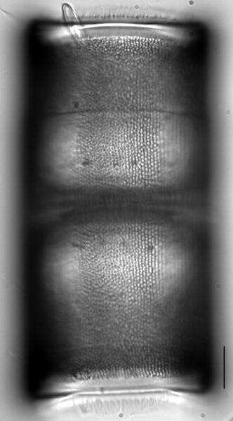 Melosira undulata LM1