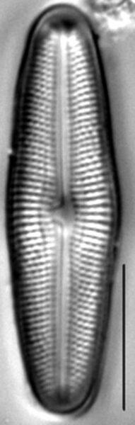 Muelleria gibbula LM7
