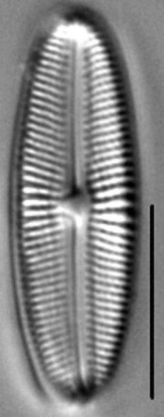 Muelleria gibbula LM2