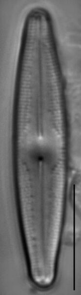 Nupela poconoensis LM2