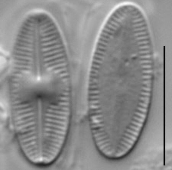 Psammothidium acidoclinatum LM5
