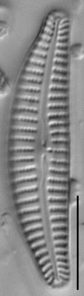 Cymbella excisiformis LM4