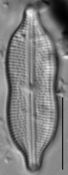 Neidiomorpha binodiformis LM3