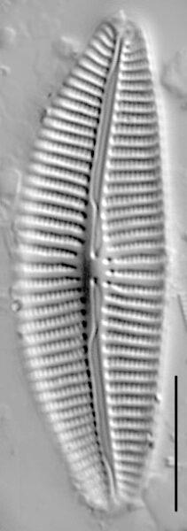 Aulacoseira Subarctica Copy