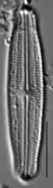 Neidiopsis hamiltonii LM3