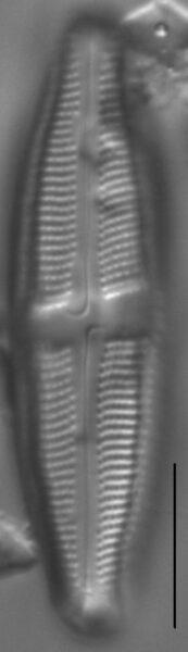Neidium fogedii LM2