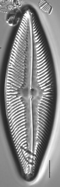 Staurosirella rhomboides SEM4