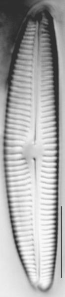 Encyonema norvegicum LM6