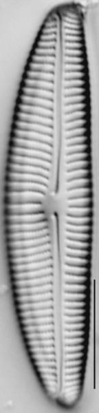 Encyonema norvegicum LM5