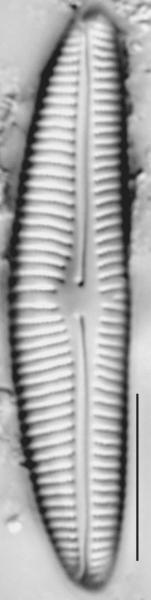 Encyonema norvegicum LM4