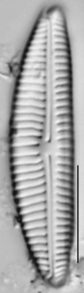 Encyonema norvegicum LM2