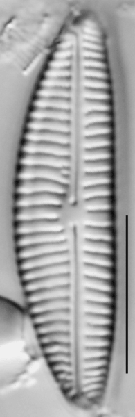 Encyonema norvegicum LM1