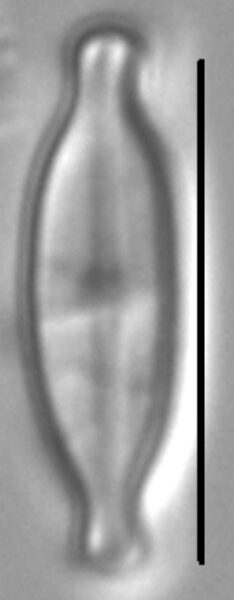 Nupela tenuicephala LM1