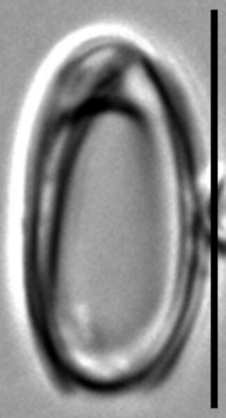 Oxyneis binalis var elliptica LM2