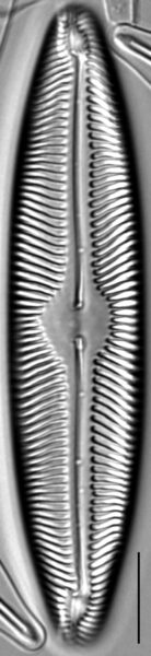Pinnularia turfosiphila LM6
