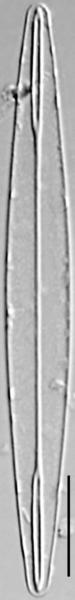 Amphipleura pellucida LM5