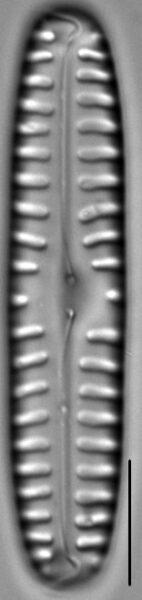 Pinnularia borealis LM7